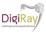 DigiRay - Centrul de Radiologie și Tomografie Dentară