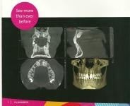 Radiografii 3D cu radiatii scazute