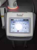 Laser Fotona