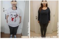 Reducere greutate cu 40 de kg prin chirurgie bariatrică
