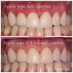 Cimentare gingie înainte și după