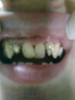Reconstrucție dentară Lorimed înainte