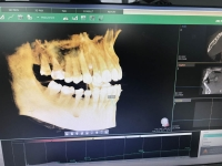 Tomografia computerizată CBCT