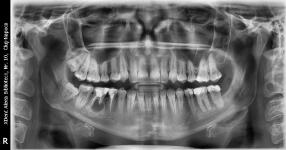 Radiografie stomatologică